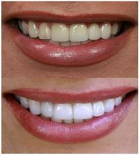 poladay teeth whitening instructions